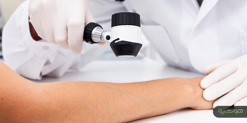 متاستاز سرطان پوست
